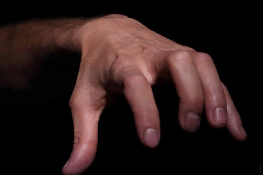 Maconha para trata-la artrite