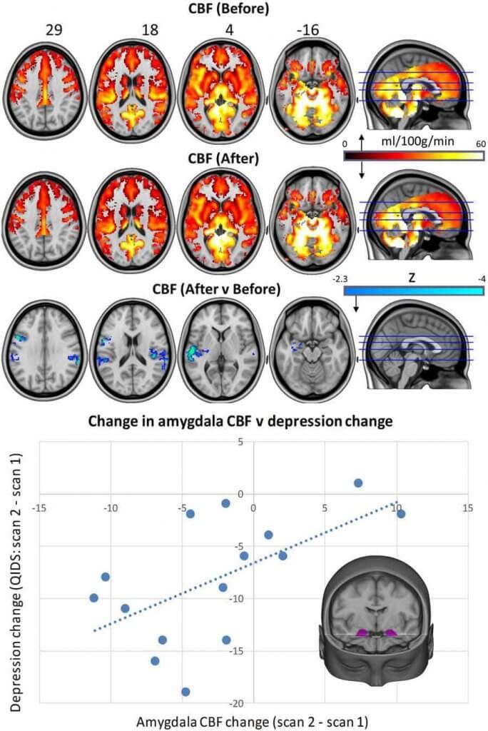 Setas alucinogenas para la depresion
