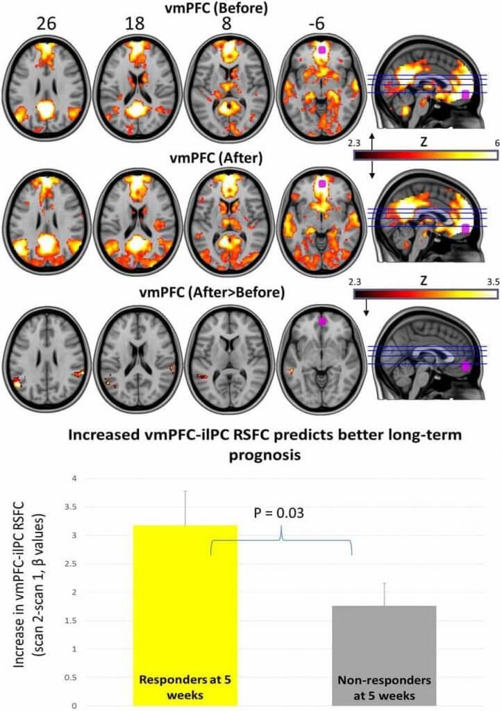 Setas alucinógenas en estudio vmPFC