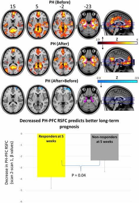 Setas y su efecto en PH