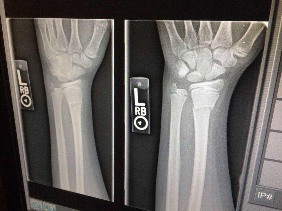 Radiografía de hueso fracturado mejora con CBN
